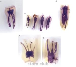 сложная анатомия корневых каналов ( фиолетовый окрас)